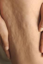 bump-on-leg