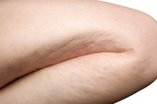 woman leg cellulite
