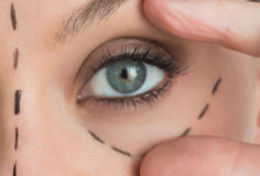Woman with face lift marker on her face stretching her eye out